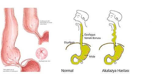 Akalazya nedir? Akalazya yemek borusunun hareket bozukluğu sonucu ortaya çıkan bir hastalıktır. Yemek borusu ağız yoluyla alınan besinleri sindirimin...