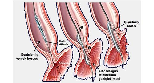 Balon dilatasyonu, Buji dilatasyonundan farklı olarak, GIS (Gastro Intestinal System) darlıklarındayakın mesafede olmayan darlıklarda tercih edilmektedir.