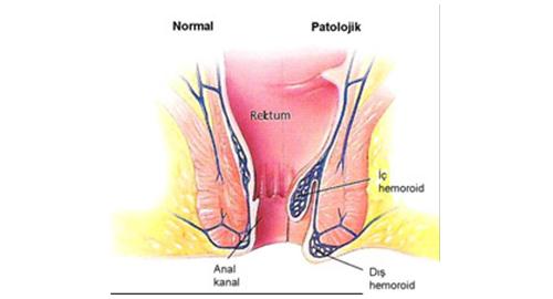 Hemoroid yada halk arasında kullanılan şekli ile basur, barsaklarımızın sonlandığı bölge olan anal kanaldaki damarlardaki şişme olarak tanımlanabilir. Çok sık rastlanan bir durumdur. İnsanların yaşamları boyunda